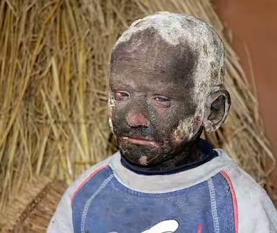 Meet The 11-Year-Old Boy With Skin Condition Slowly Turning Him Into A Stone - PHOTOS!
