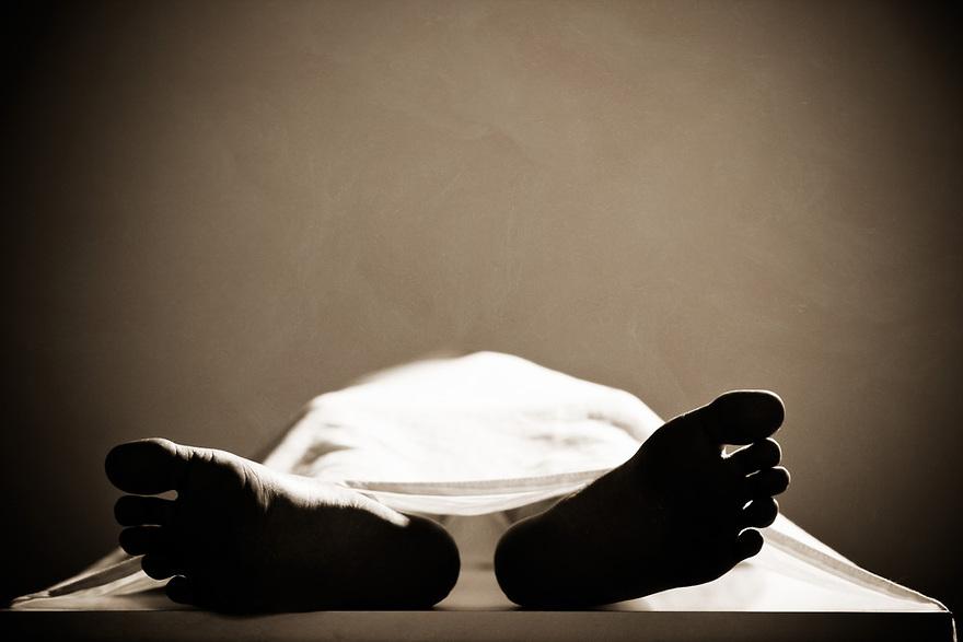 Dead_body_leg