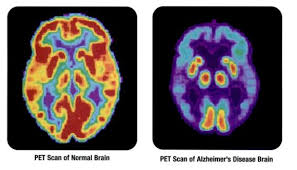 Scientists hopeful of new treatment for Alzheimer's disease