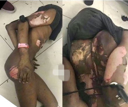 Tortured In Malaysia 2