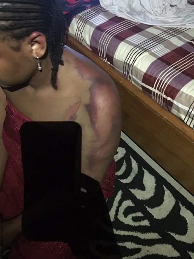 Beaten By Doctor Husband2