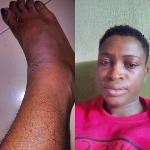 They Gave Me the Hottest Slap Ever - Lady Recounts Her Ordeal in the Hands of Policemen in Abia