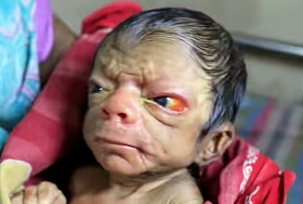 Baby Born With Rare Skin Condition That Makes Him Look Old