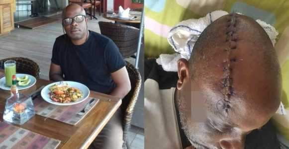 Man Butchered With Machete By His Security Guard In Oyo State Miraculously Survives Photos