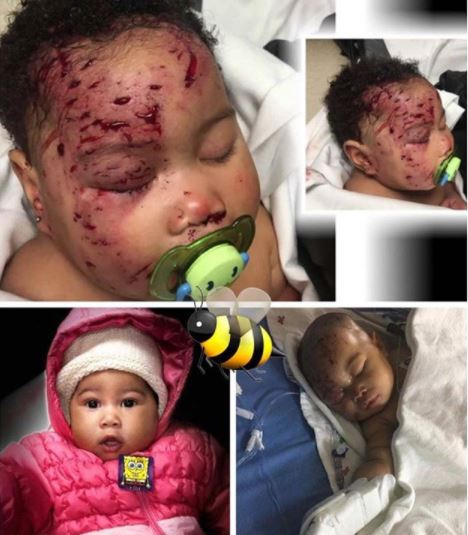 Baby Attacked By Raccoon?resize=468%2C535