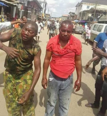 Brave soldier beaten black and blue for preventing touts from carrying out jungle justice (Photos)