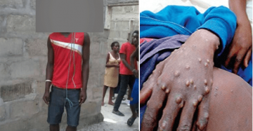 Monkeypox victim commits suicide in Bayelsa