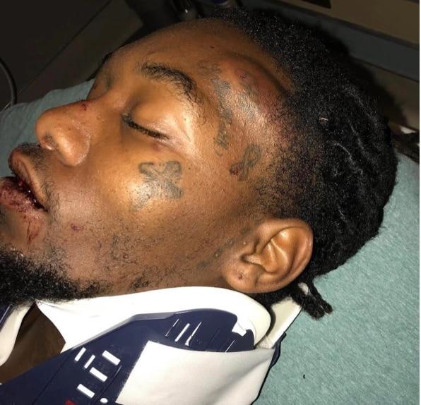 Offset after his car crash (lib)